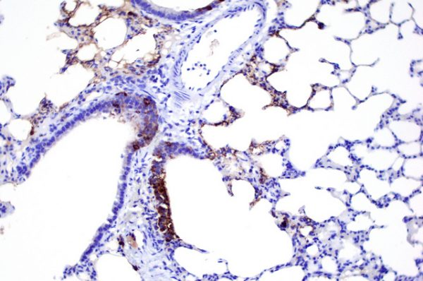 Lung tissue from a Syrian hamster infected with SARS CoV-2 showing high levels of viral protein (in brown) in the airway epithelium and lung parenchyma